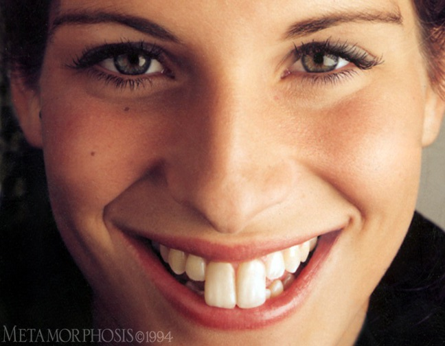 how to make teeth look whiter with makeup
