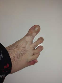 Agony of da feet