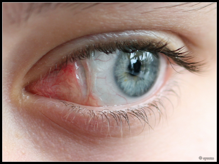 how to get rid of eye scars
