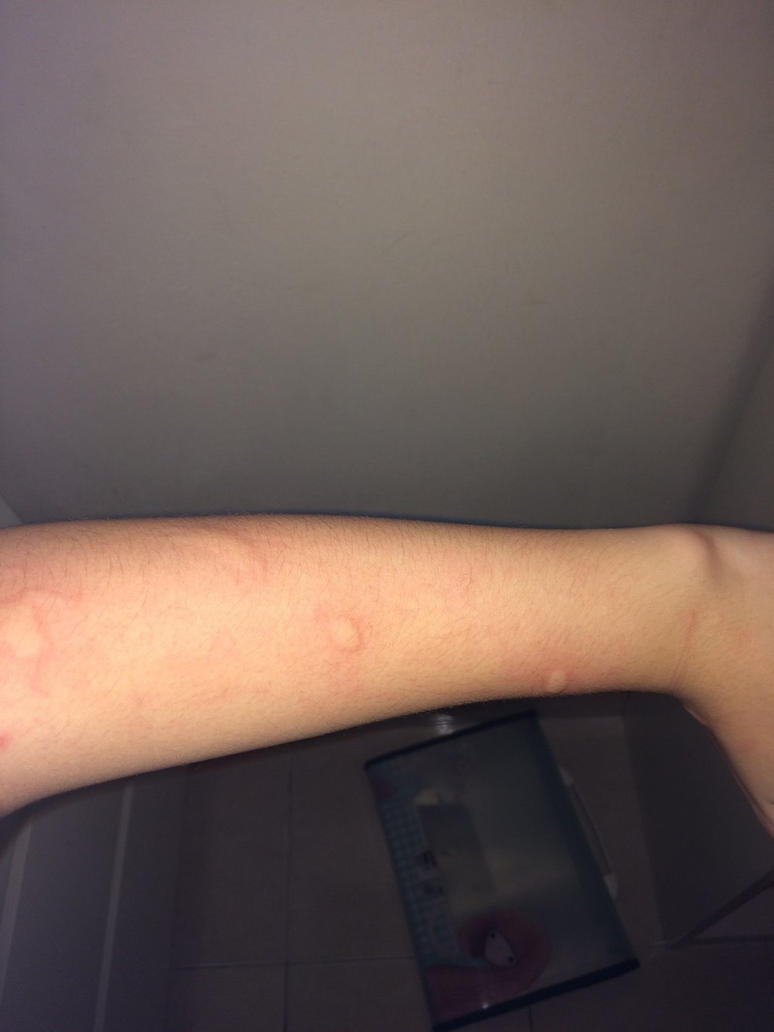 RIP MY LEFT ARM WITH MOSQUITO BITES by CookiesAndCreamMC