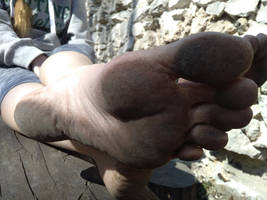 Have the barefooters hard skin?