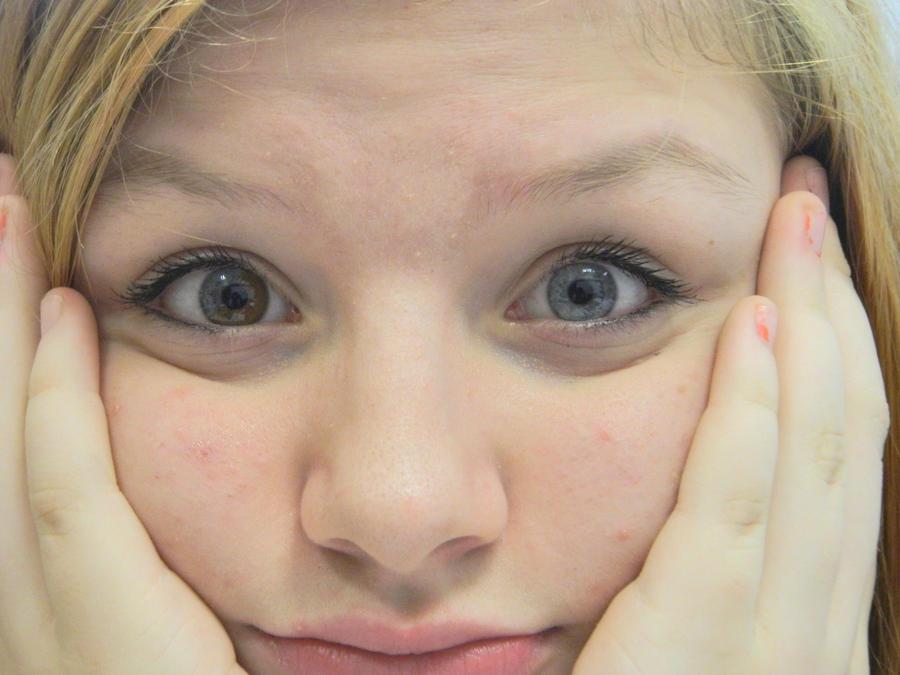 Heterochromia Iridum By Justme2324 On Deviantart