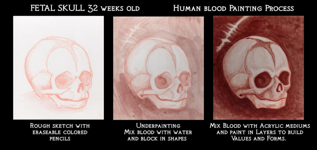 32 Week Old Fetal Skull Blood Painting Process by AshleyRussell on ...