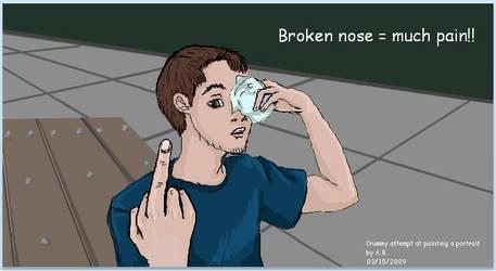 Broken Nose by MysticBlack5