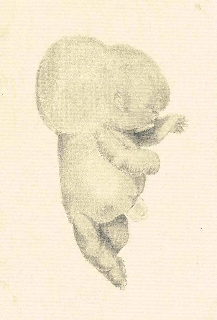 Deformed fetus by studiodenny
