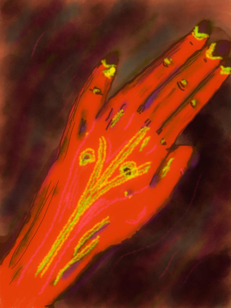 broken finger xray by iliveinthewoods on deviantart