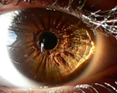 eye by Mikeylaa