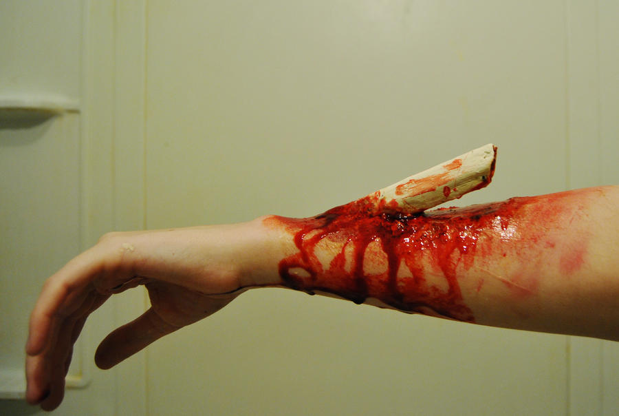 compound fracture 1. by wonderbandalice on deviantart, Human body