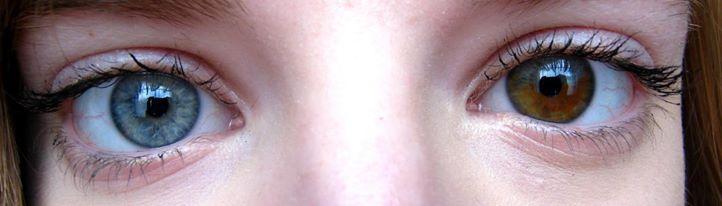 My Eyes Heterochromia by VeryUglyUnicorn