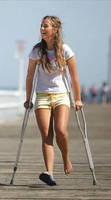 Cute girl on crutches