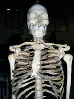 Skeleton II by ephedrina-stock