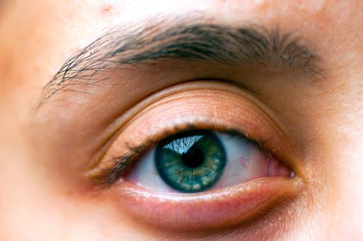 Macroscopic Image of Eye