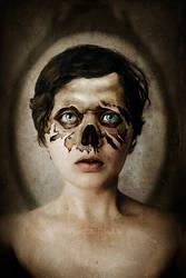 Skin and Bones by AlbinoNial