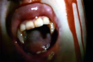 Bloody Rage by ransim
