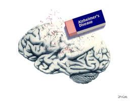 alzheimer's disease by the-infinite-opi
