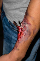 Wounds: Arm with foreign substance