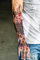 Wounds: Burned arm