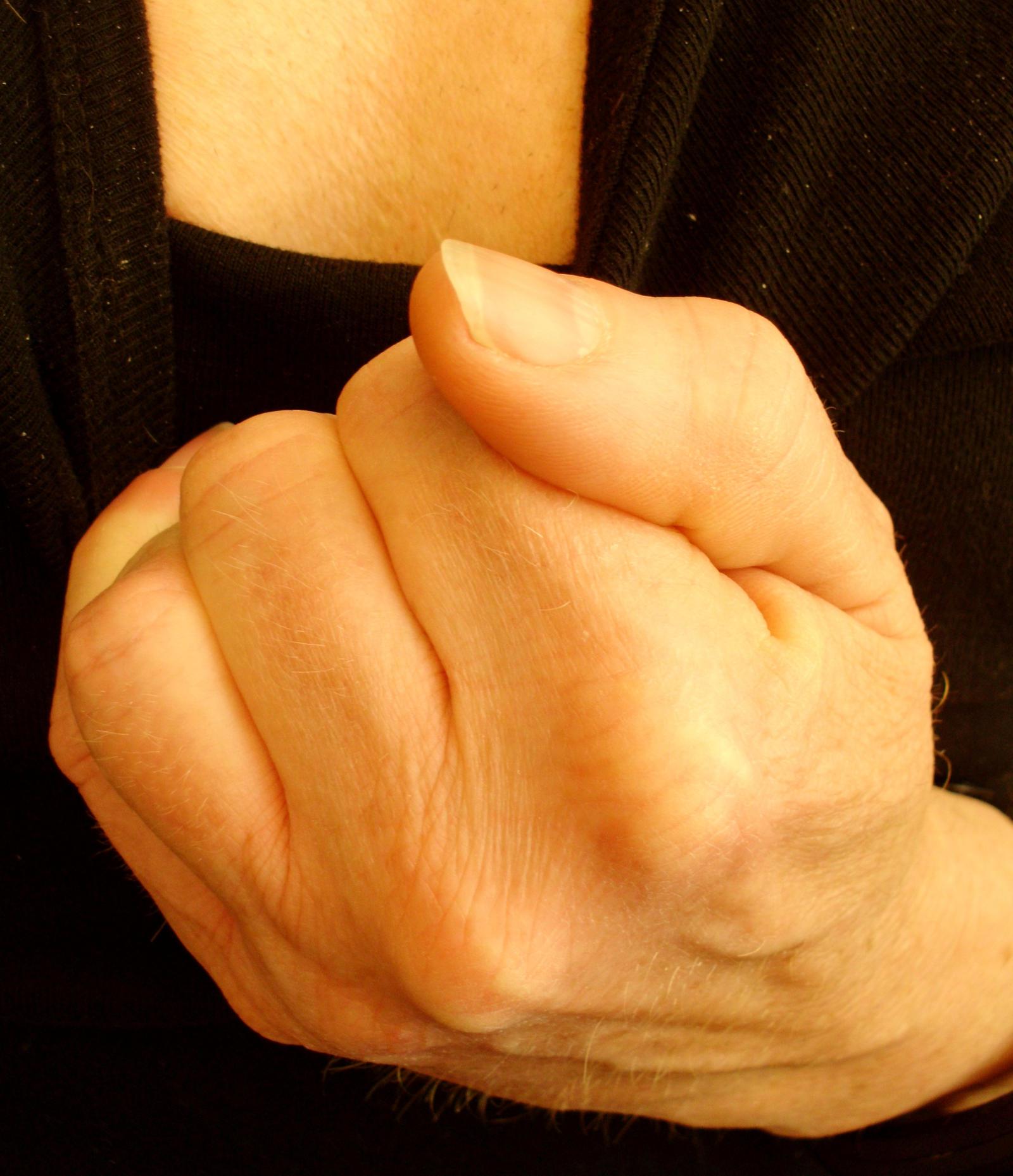grip by Mittelfranke