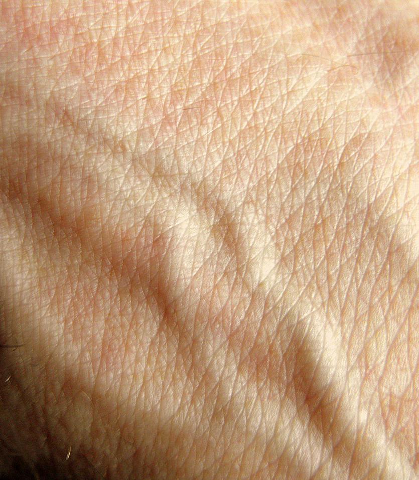 skin and veins by Mittelfranke