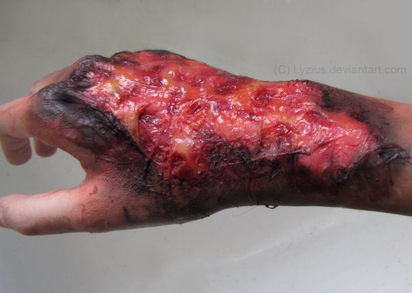 Caustic Burns On Skin ...