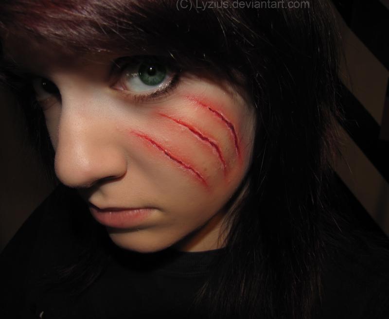 Cat Scratch Scar