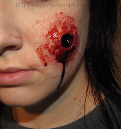 Bullet Wound Prosthetic By Placebofx On Deviantart