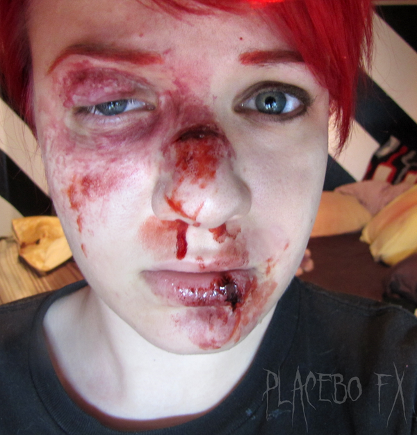 Bruised and Broken by PlaceboFX