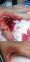 Cleaned Wound