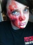 Scraped Face