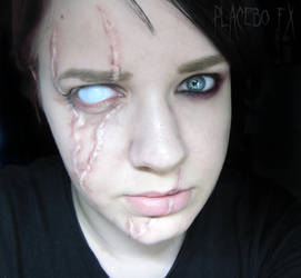 Scarred by PlaceboFX