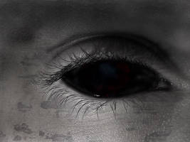 Black Eye by SpriteMasters