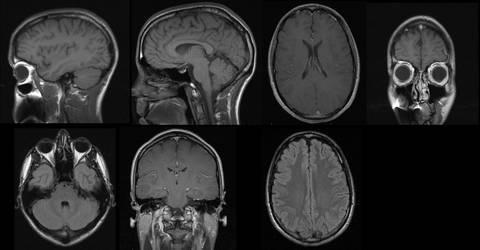 MRI Brain Scan - Medical