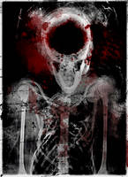 broken crushed skeleton by freyetfull