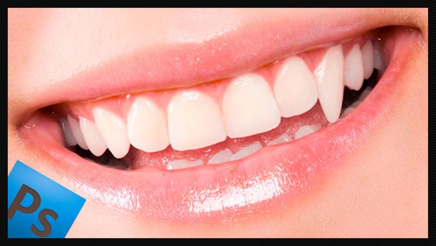 Tooth transformation videotutorial