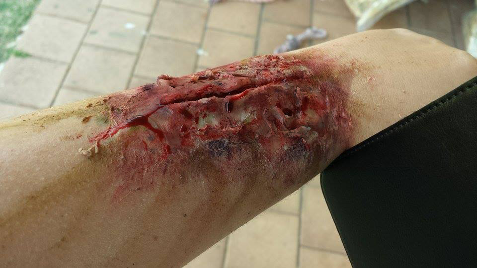 Zombie Infected Scar by JELOjess on DeviantArt