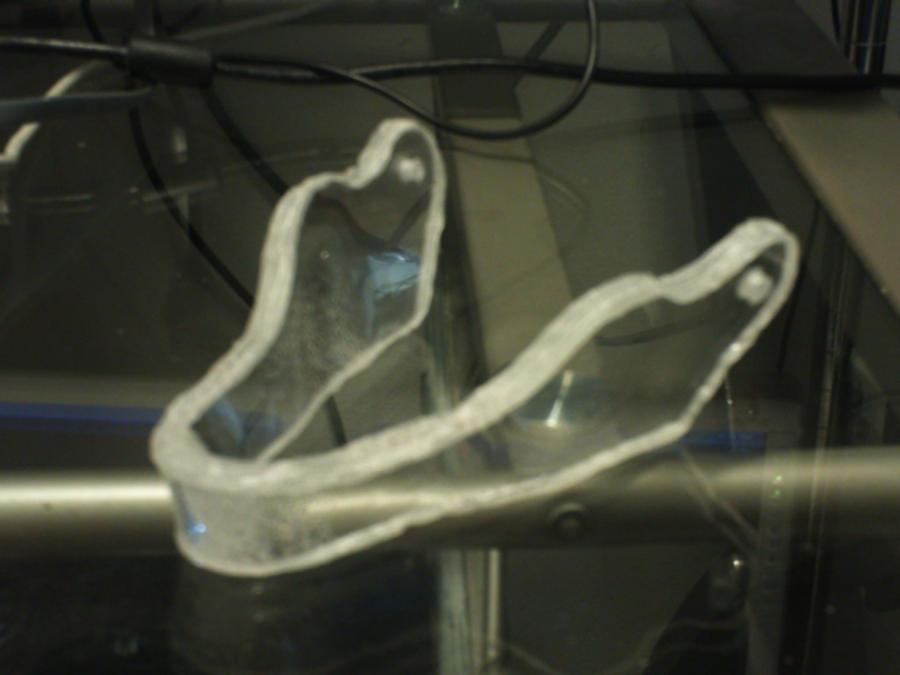 Glass Jaw by Gradendine