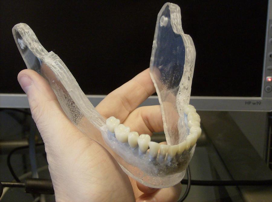 Glass Jaw 2 by Gradendine
