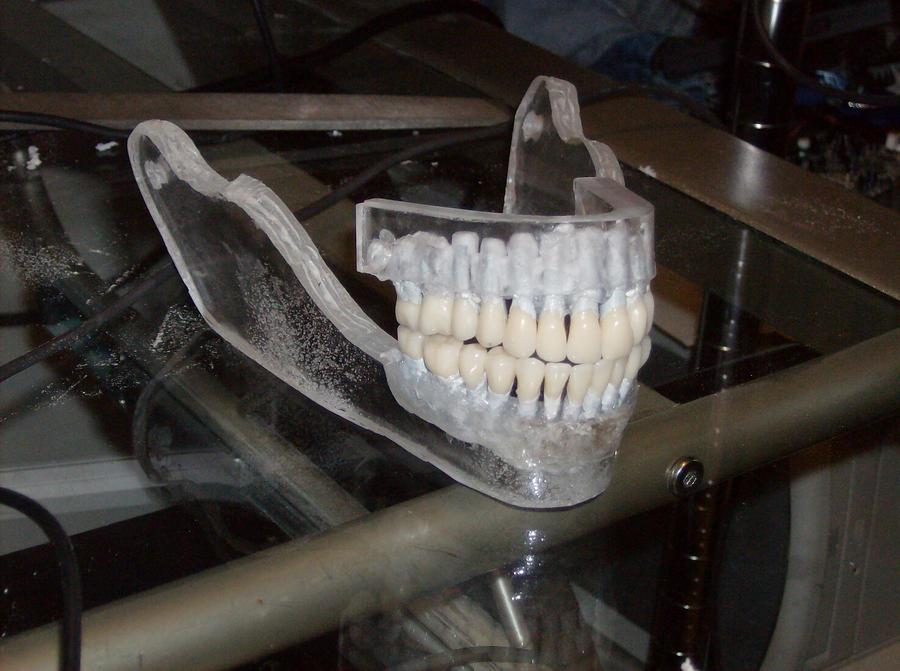 Glass Jaw 3 by Gradendine