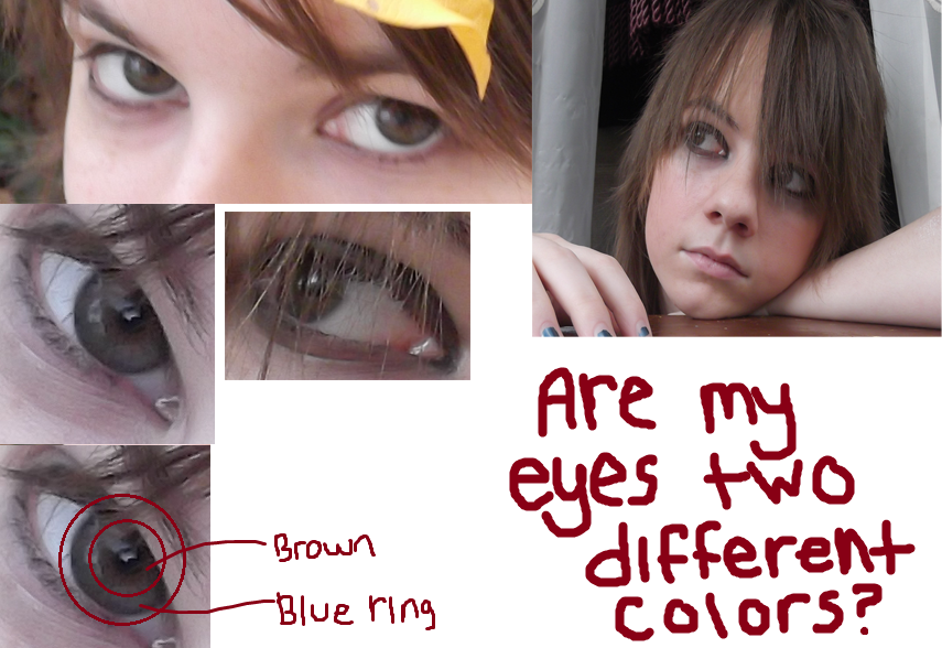 Are My Eyes Two Different Colors? by Riylin