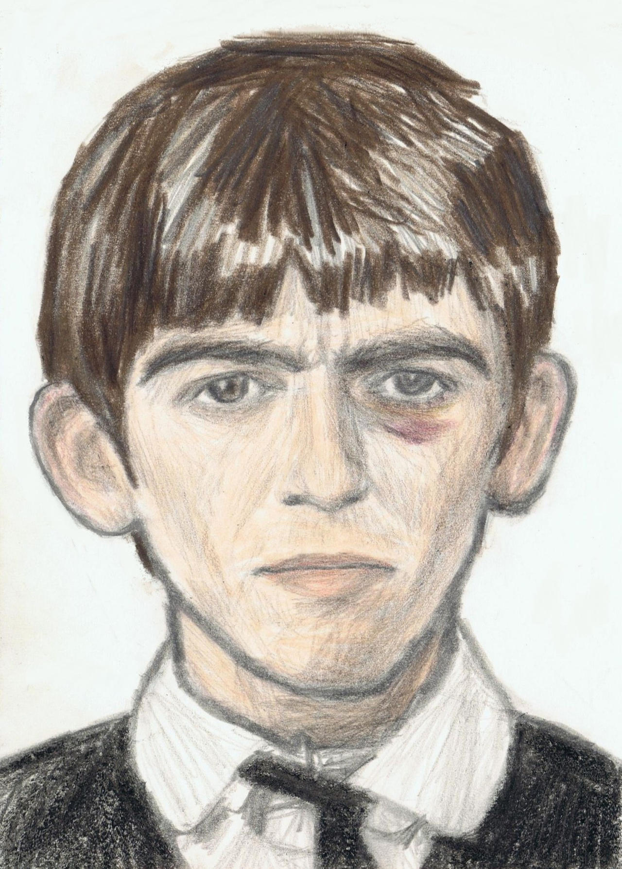 George Harrison with a black eye by gagambo