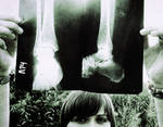 broken bones by liquidsunnyday