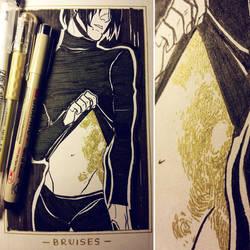 Ink/GrossTober 1: Bruises