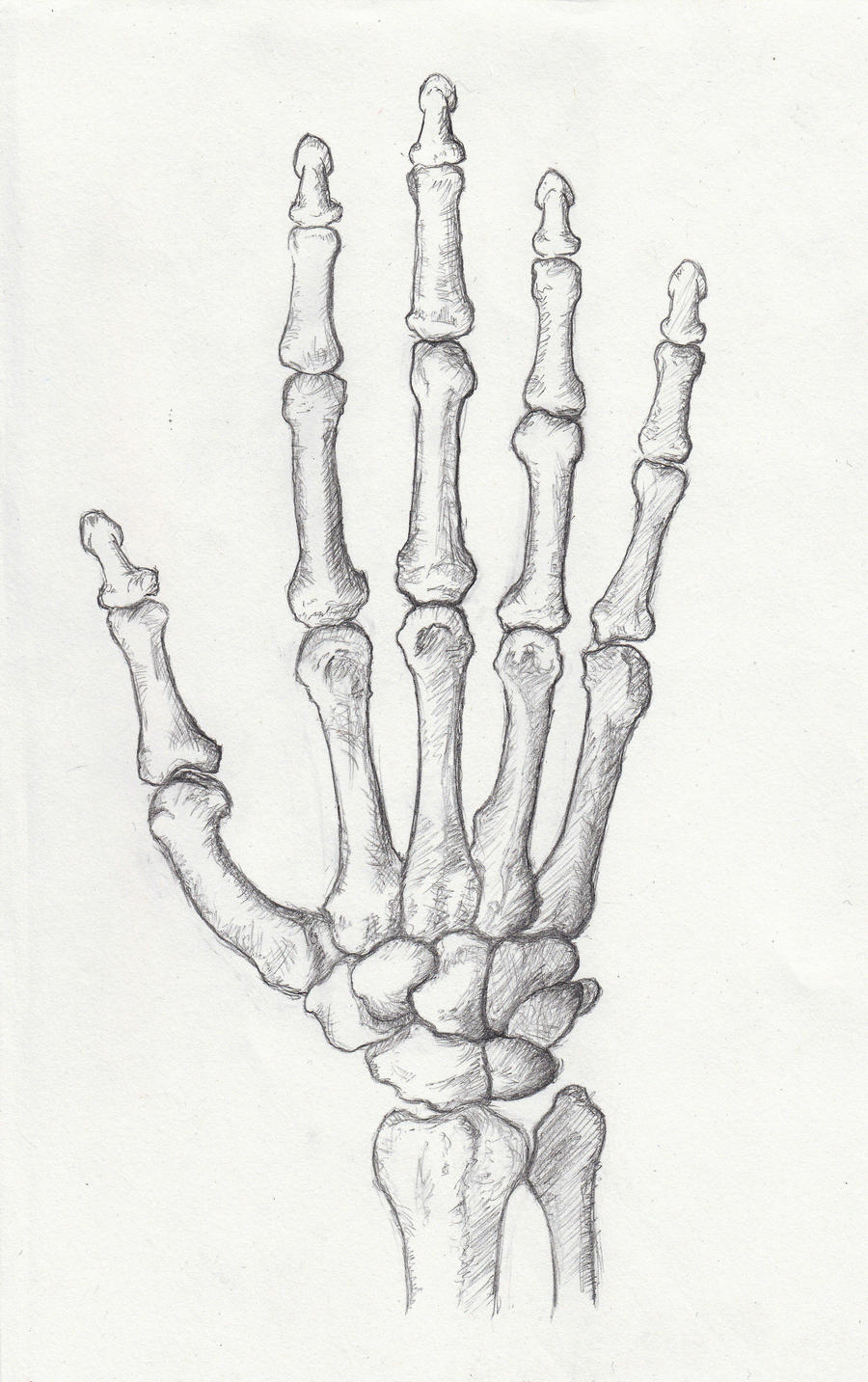 Bones in your Hand by ... Lunate Dislocation