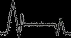 F2U | Heartbeat Divider