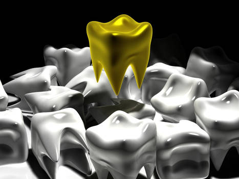 A Gold Tooth