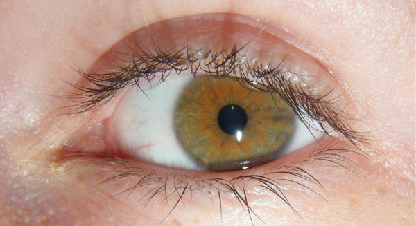 behind thesis hazel eyes Blue eyes to test these predictions prefer women with the same eye color and 2) specifically suggest the presence of a male adaptation for the detection.