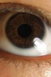 My eye!!! by Uncutrok