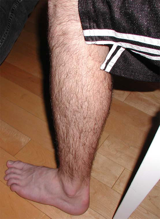 Hairy Legs Photos 109