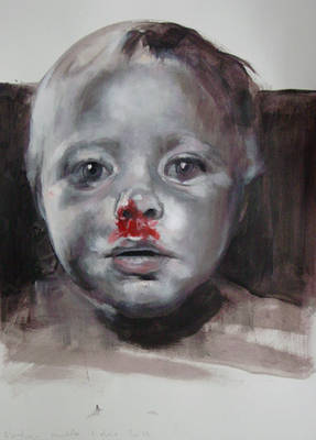 Bloody Nose - 01122011