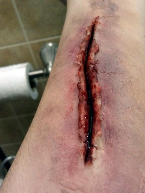 Sliced Arm (Close Up) by KRSkreations